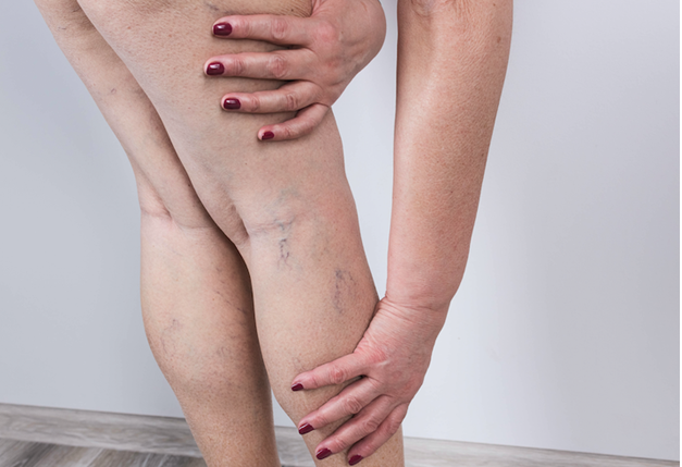 Dr. Diana Wilsher's Tips to Prevent Varicose Veins